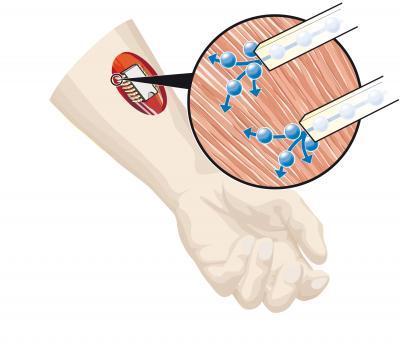 瑞典科学家发明可控制肌肉的电子芯片