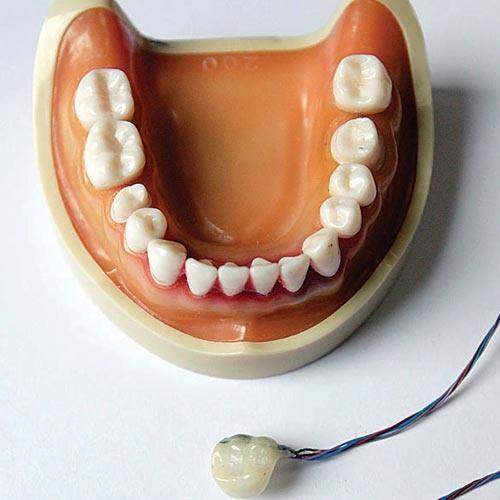 台湾教授开发智能假牙 应用于医疗健康领域