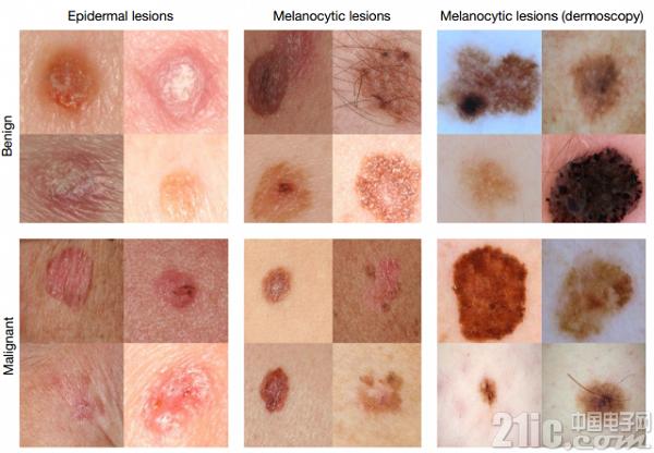 借助人工智能技术:人们有望通过手机诊断皮肤癌