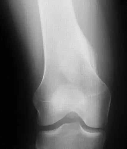 医疗影像诊断骨肿瘤全过程