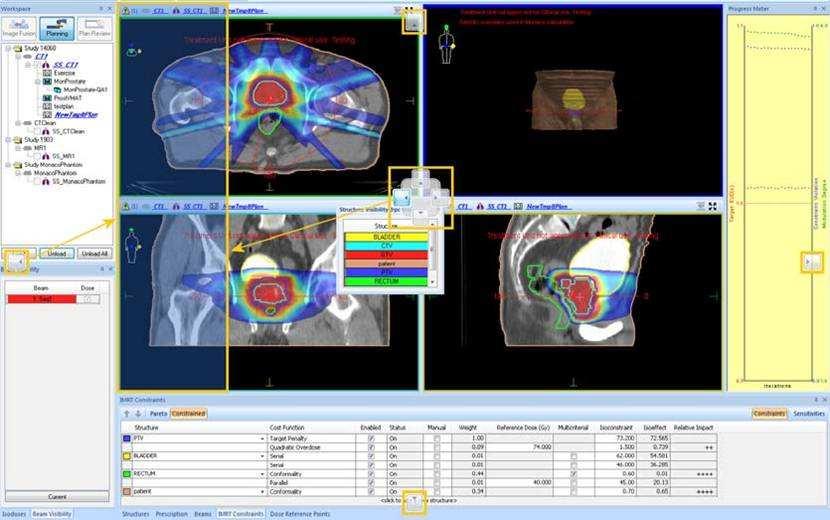 中科院自主研发我国首个精准放射治疗计划系统
