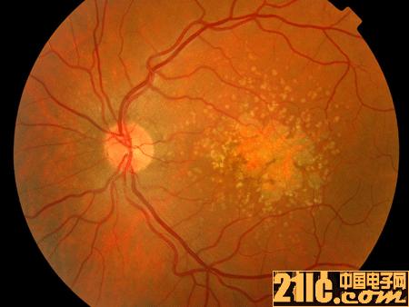 厉害!新型机器人能完成眼内注射治疗黄斑变性手术