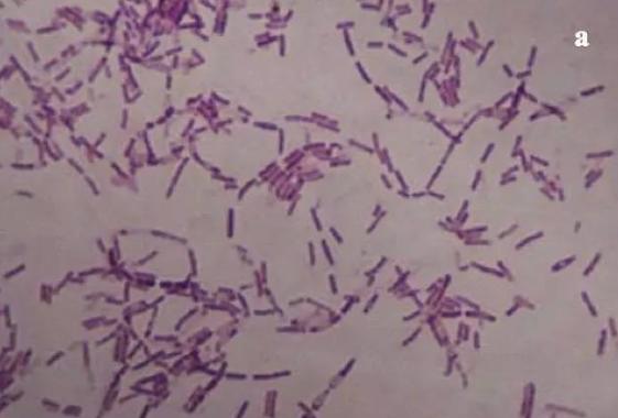 """他把350万年前的细菌注射进体内,发生了一些""""难以言喻""""的事"""