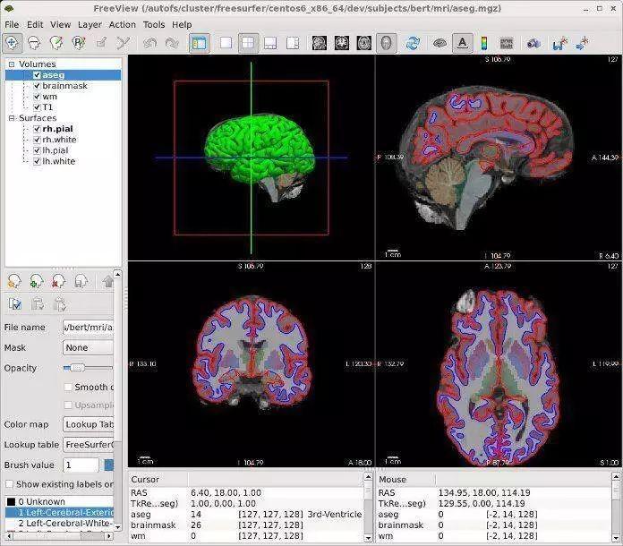 对大脑信息进行复制、修改、删除,能实现吗?
