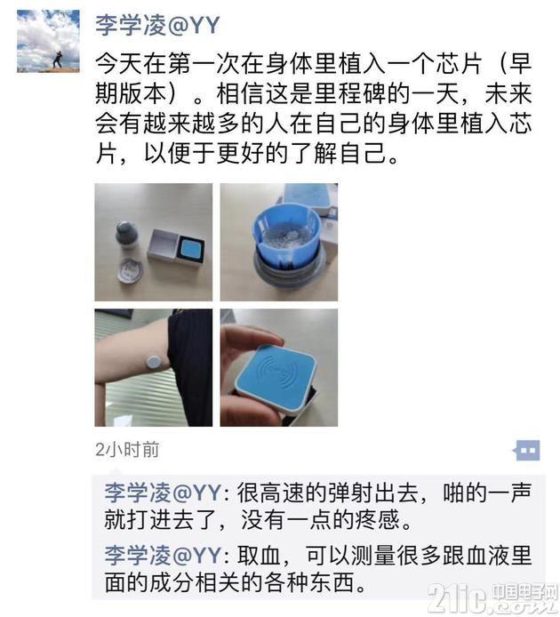你敢在身体里植入芯片吗?YY CEO李学凌自曝在身体植入芯片