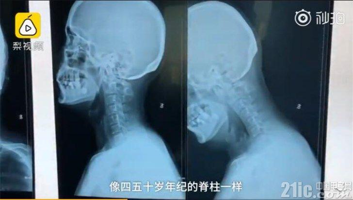 还敢低头看手机吗?90后IT小伙被诊断出脊柱退化严重