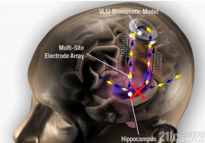 记忆力低下?大脑植入芯片一切不用愁!