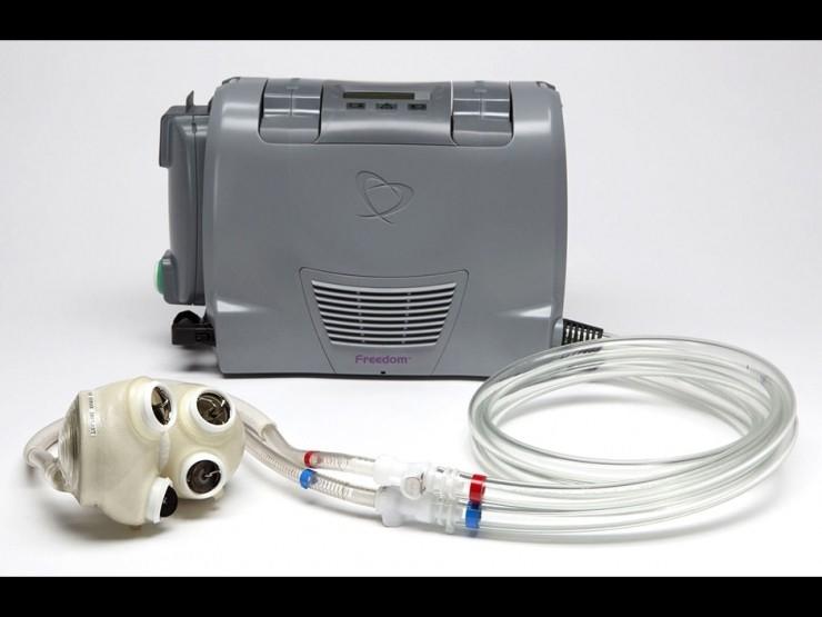 完全人工制造的心脏来了:今年开始临床应用