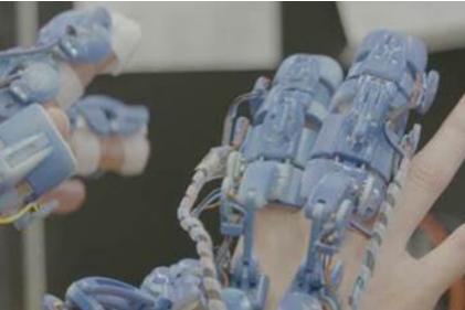 英国将开发微创手术用可穿戴式机器人设备