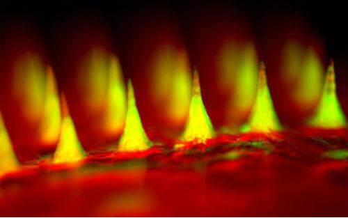 十大科技技术的智能胰岛素贴片获投资