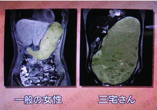 为什么大胃王吃不胖?揭秘大胃王的秘密