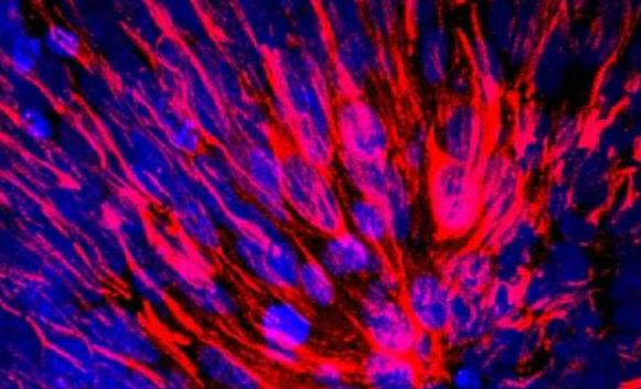 科学家培育出更加逼真的类大脑:直径4毫米微型球状