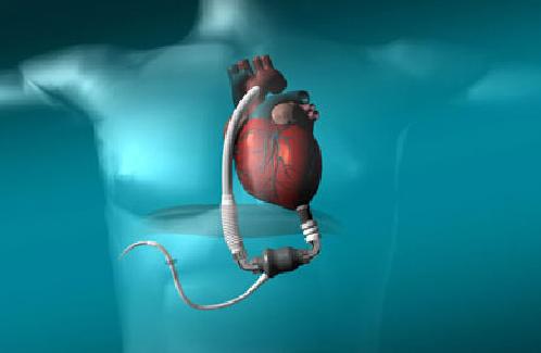 以色列医院完成首例心衰治疗装置人体植入手术