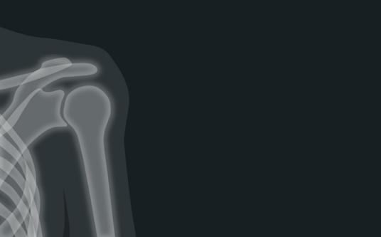 恐怖!国外一妇女肩膀疼痛就医 骨头竟然消失了